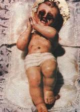 teresa musco_niño con emanaciones de sangre